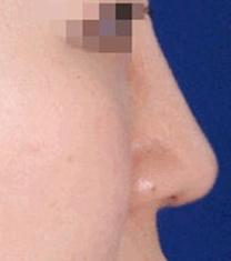 韩国A-one整形外科医院驼峰鼻矫正案例对比图