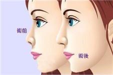 隆鼻假体取出后多久可以重新植入?