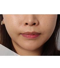 韩国UNIMEDI整形外科面部激光溶脂案例对比图