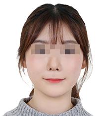 韩国诺宝丝整形外科医院颧骨缩小案例对比图