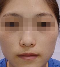 韩国Clean N 皮肤科医院祛斑案例对比图