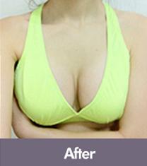 韩国DIO整形外科医院隆胸手术案例对比图