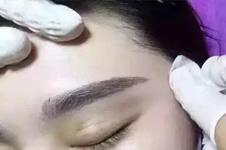 种植发际线和纹发际线区别究竟有多大?
