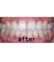 笑逐颜开牙科牙齿矫正案例对比图
