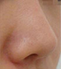 造颜整形外科鼻尖延长案例对比图