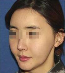 韩国Minerva整形外科面部重塑提升案例对比图_术前