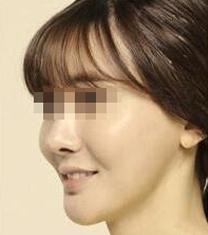 韩国Minerva整形外科面部重塑提升案例对比图_术后