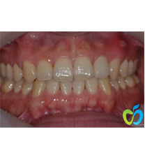 韩国江南苹果树牙科医院变色牙矫正案例对比图