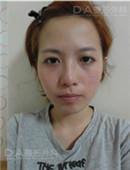 网友分享 韩国DA面部轮廓真实经历_术前