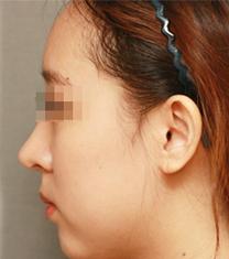 韩国D&A整形外科医院隆鼻案例对比图