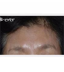 韩国Ever整形外科面部提升手术案例对比图_术后