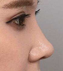 韩国然美之整形外科医院隆鼻案例对比图