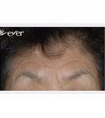 韩国Ever整形外科面部提升手术案例对比图_术前