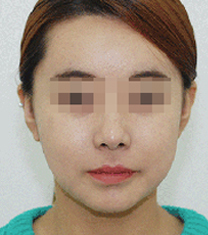 韩国Zeah牙科医院地包天矫正案例对比图
