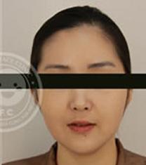 韩国姿飞抗老化医学美容中心面部轮廓案例对比图