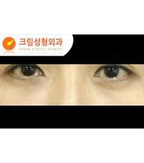 韩国Cream整形外科去眼袋案例对比图