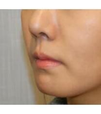 韩国Flora整形外科下巴整形案例对比图