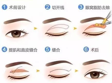 切开法双眼皮手术方式展示
