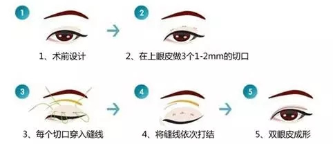 埋线双眼皮手术方法示意图