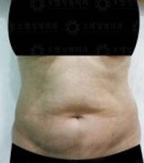 韩国Oell(原Aqua)整形外科腰腹吸脂案例对比图