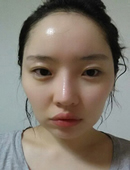 韩国巴诺巴奇整形外科-网友带你亲身体验,韩国巴诺巴奇面部轮廓整形案例!