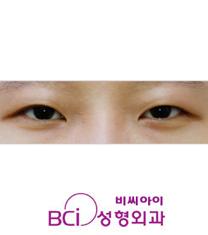 韩国BCI整形外科双眼皮手术案例对比图