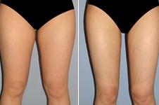 激光溶脂瘦大腿效果好不好,手术安全吗?