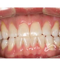 韩国CHOI&LEE牙科诊所牙齿美白案例对比图