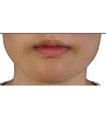 韩国CF整形外科瘦脸针案例对比图