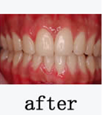 韩国EROM牙科医院-韩国EROM牙科医院牙齿美白案例对比图