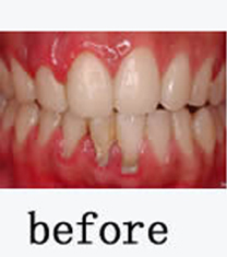 韓國EROM牙科醫院-韓國EROM牙科醫院牙齒美白案例對比圖