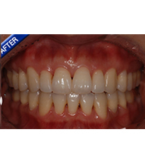 韩国One day牙科医院牙齿矫正案例对比图