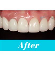 阳地齿科牙齿矫正案例对比图