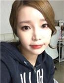 韩国ID整形医院-真实案例分享:韩国ID面部轮廓整形双颚+下颌角日记