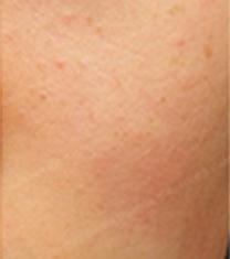 延世STARSKIN皮肤科祛红血色案例对比图