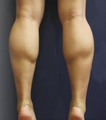 韩国Valinew整形外科瘦小腿案例对比图