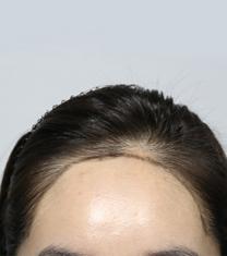 韩国共感(空减)植发医院发际线移植案例对比图