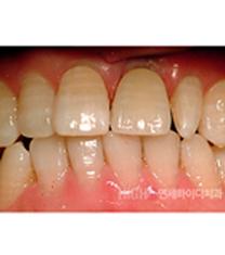 延世HIGH D牙科种植牙案例对比图