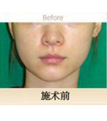 Eureka皮肤科面部提拉案例对比图_术前