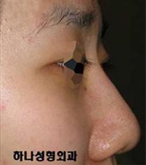 韩国韩亚整形外科医院驼峰鼻矫正案例对比图