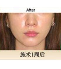 Eureka皮肤科面部提拉案例对比图_术后