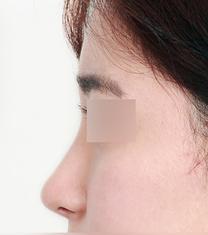 韩国纽莱茵整形医院驼峰鼻矫正案例对比图