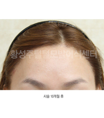 韩国SJ黄盛柱毛发皮肤医院种植发际线案例对比图