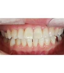 韩国透明牙科医院牙齿矫正案例对比图