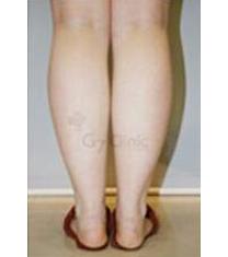 G7 Clinic小腿吸脂案例对比图_术前
