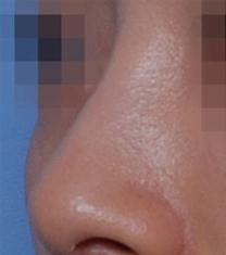 韩国多美美容整形医院隆鼻案例对比图