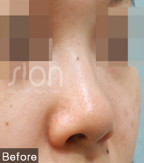 时蕴整形外科隆鼻案例对比图