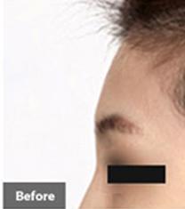 韩国DrOSClinic整形-韩国Dr.O S.Clinic整形外科额头填充案例对比图