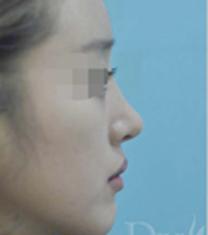韩国DIVA整容外科医院隆鼻案例对比图