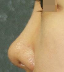 韩国KSJ整形外科隆鼻案例对比图_术后
